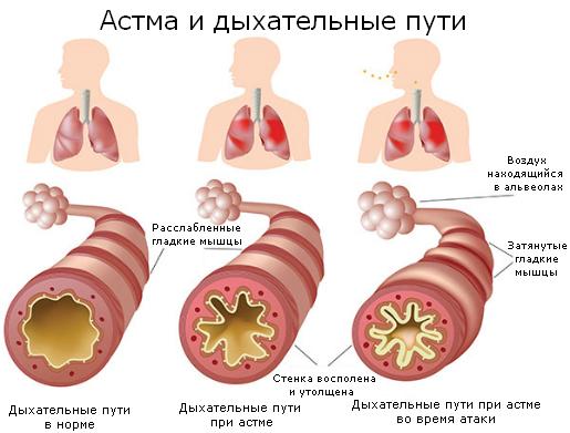 история болезни бронхиальная астма легкая персистирующая