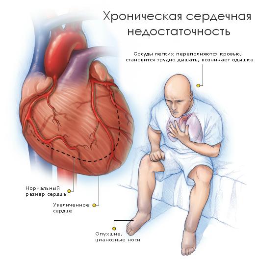 Сердечная недостаточность: основные признаки, симптомы, лечение ...
